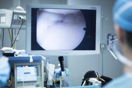 endoscopie, vizualizare esofag